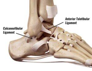 Anterior talofibular ligament