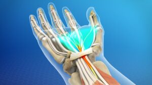 The carpal tunnel