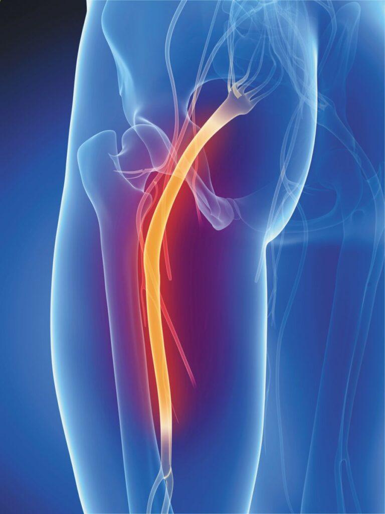 Sciatic nerve running through the buttock